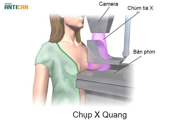 Xét nghiệm ung thư vú bằng phương pháp chụp X quang